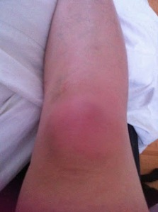 Cellulitis, Infection, Knee