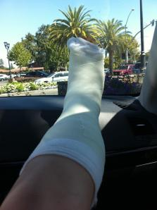cast, crutches, surgery