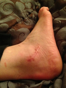 Swollen ankle 5 months after surgery
