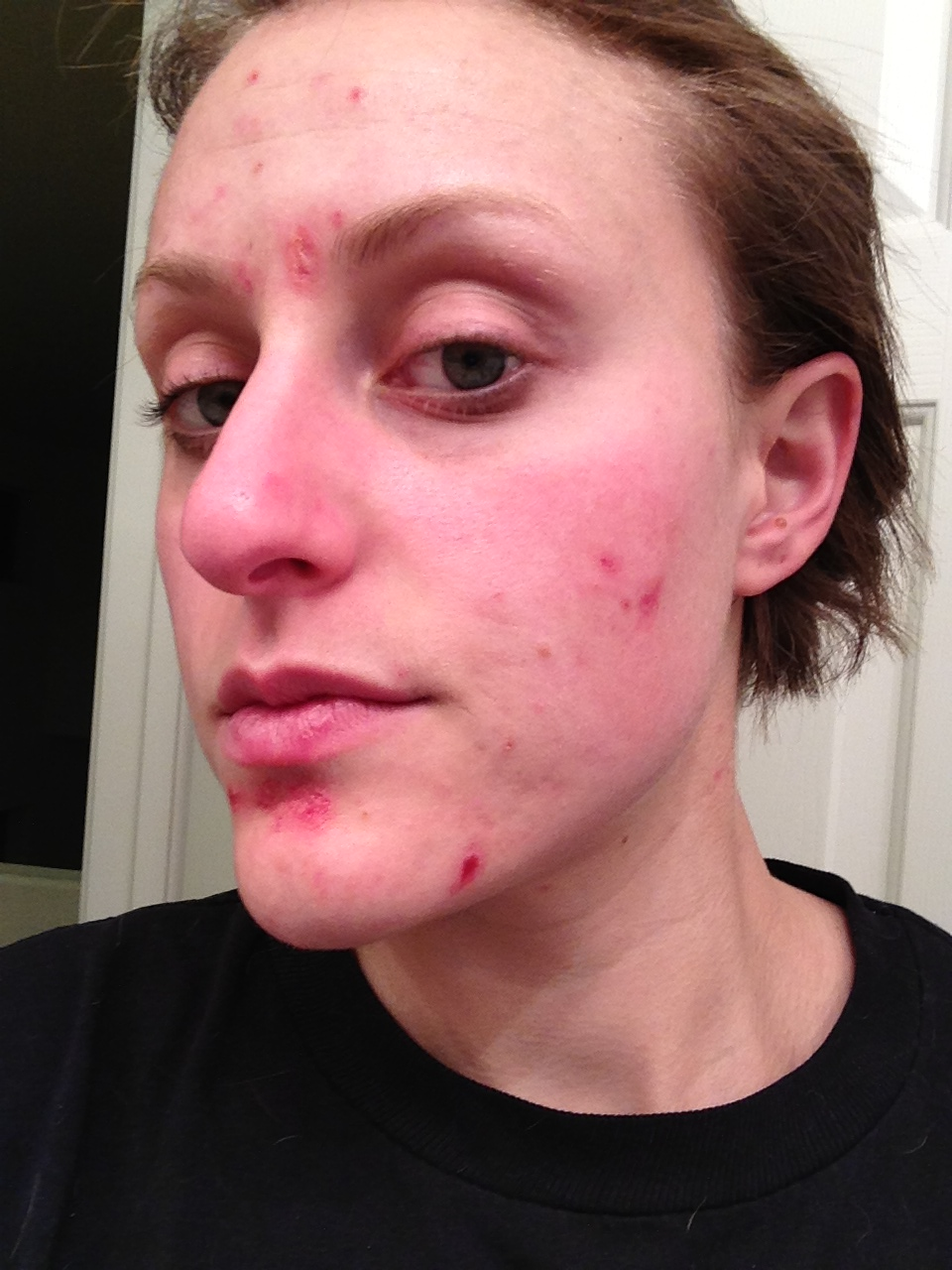 Facial scarring from acne — pic 2