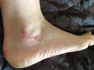 swollen-ankle-complex-regional-pain-syndrome-rsd